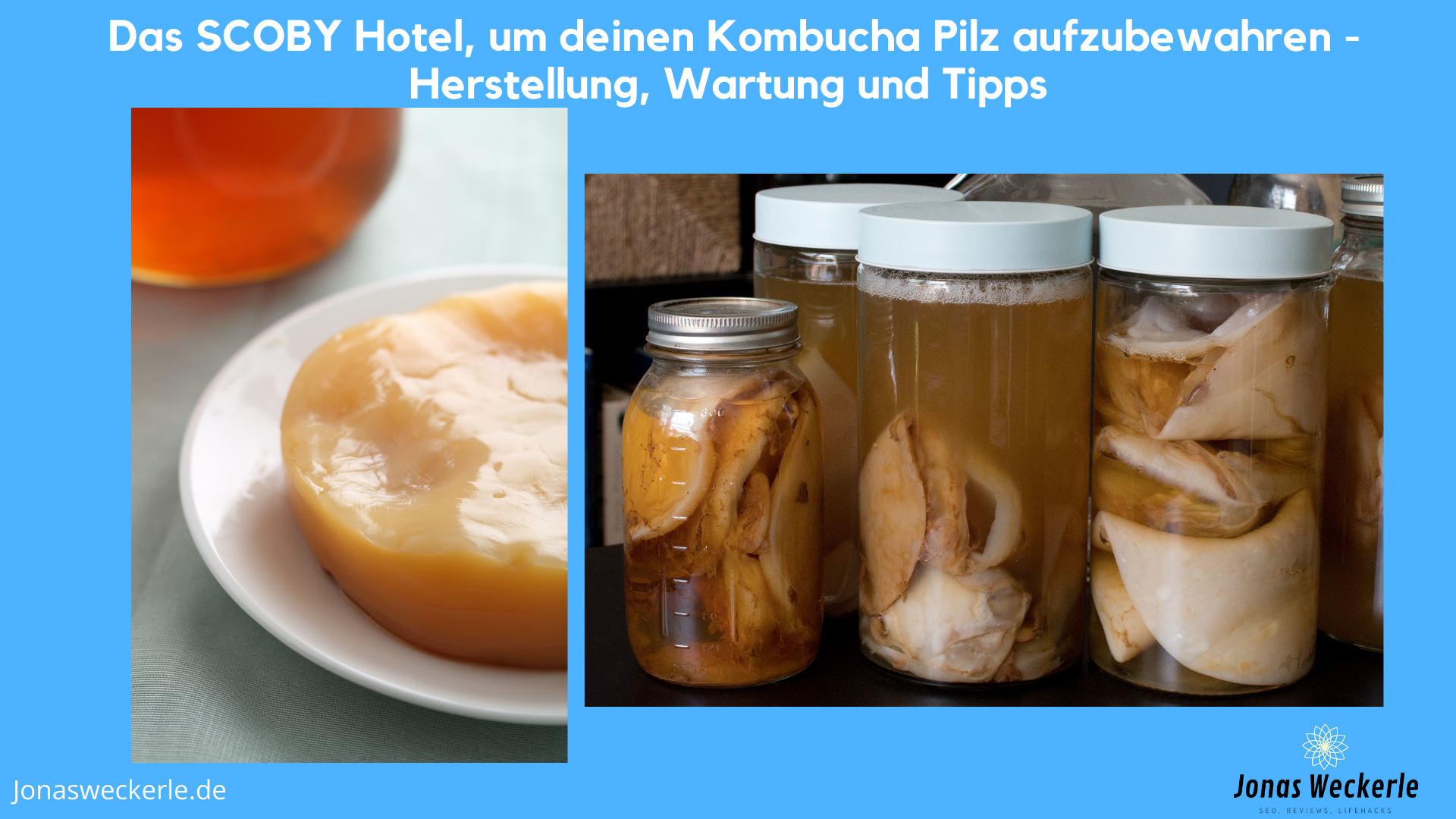 Scoby Hotel